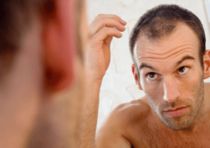 Top reasons for hair fall in men and natural prevention tips for hair loss