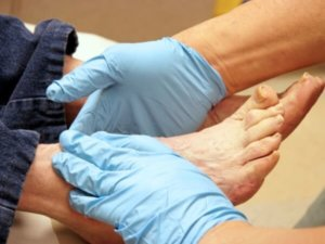 Men foot problems and their treatment