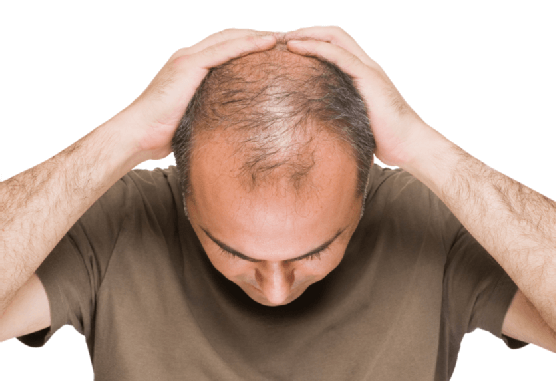 Common hair problems faced by men and hair solutions