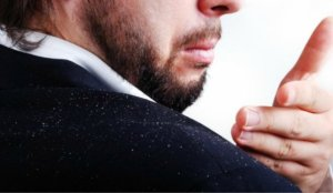 How to treat dandruff in Men
