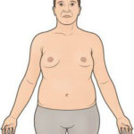 Klinefelter's Syndrome, symptoms, diagnosis, treatment