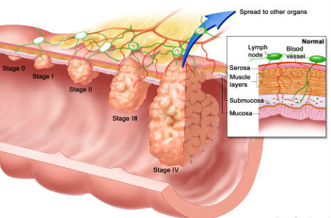 How to treat bowel cancer in men?