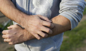 Home remedies for itchy and irritating skin in men