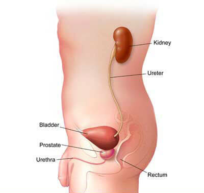 Urinary bleeding in men