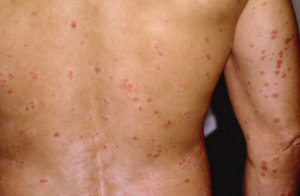 Why do men get Psoriasis? Know the symptoms and cure of Psoriasis