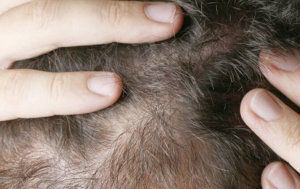 Will dandruff cause hair loss in men?