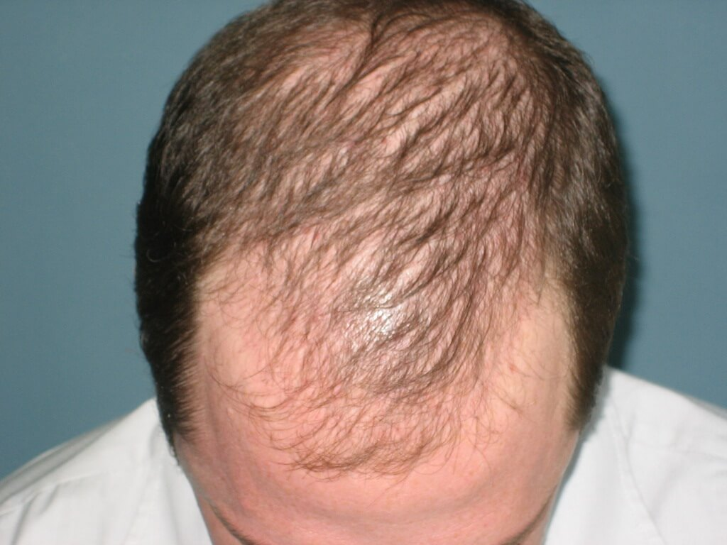 Top Hair Regrowth Treatments for Men