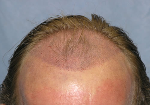 Is hair transplantation safe for men? Truths about transplantation