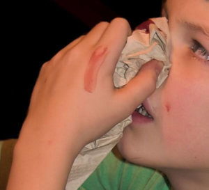 Bleeding nose – precautions and ayurvedic treatments