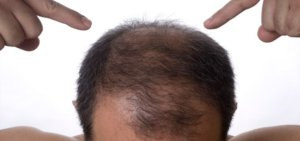 Is stem cell therapy for hair safe and effective?