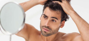 Scalp moisturizing creams for men during winter