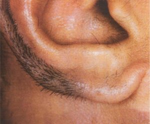 How to get rid of ear hair for men